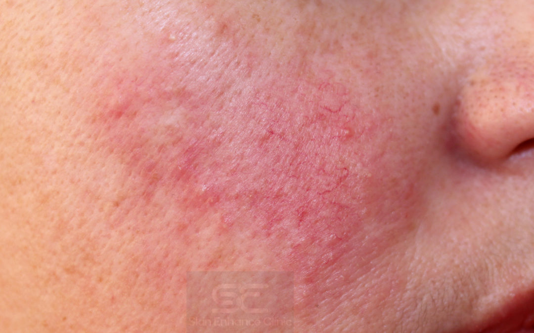 Could the sensitivity on your face be Rosacea?