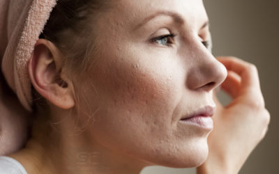 Acne Scars: Why Me? What Now?